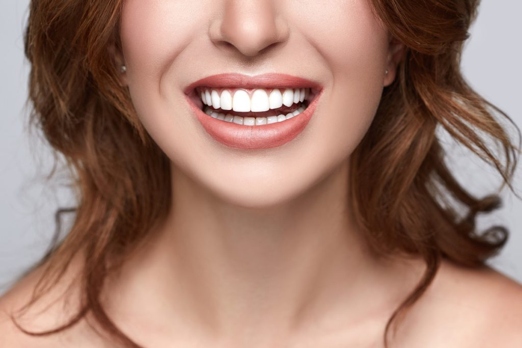 woman with very white teeth