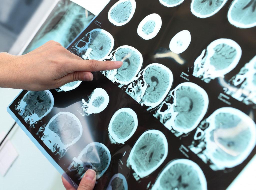Doctor examines the patient tomogram