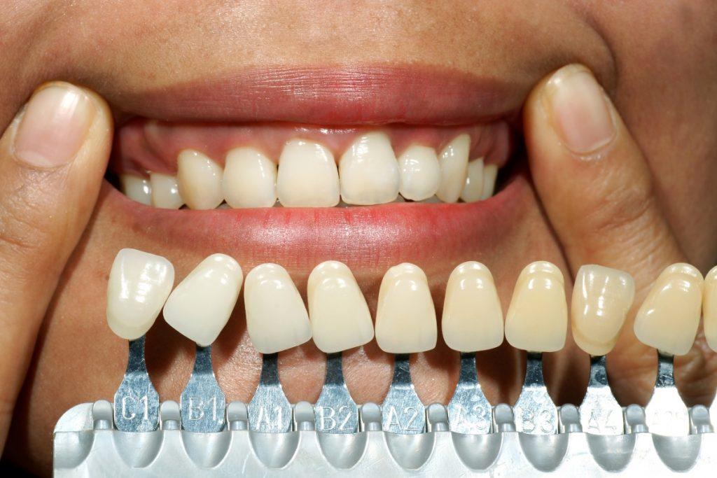 teeth color